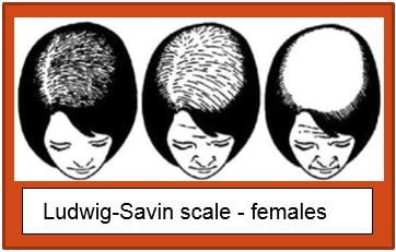 Ludwig Savin scale female hair loss