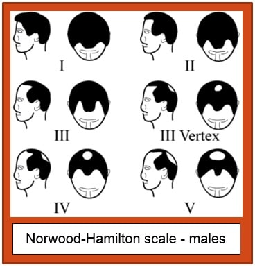 Norwood Hamilton Scale Males Hair Loss Patterns